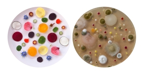 Gut Microbes: The Final Digestive Frontier